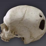 Crâne avec double trépanation